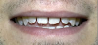 Dental Veneers | Dental Crowns | Dental Bridges Fort Worth TX | Arlington TX