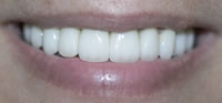 Dental Veneers Fort Worth TX | Arlington TX
