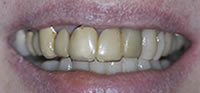 Dental Crowns | Dental Bridges Fort Worth TX | Arlington TX