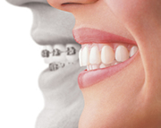Orthodontics | Invisalign® Fort Worth TX | Arlington TX